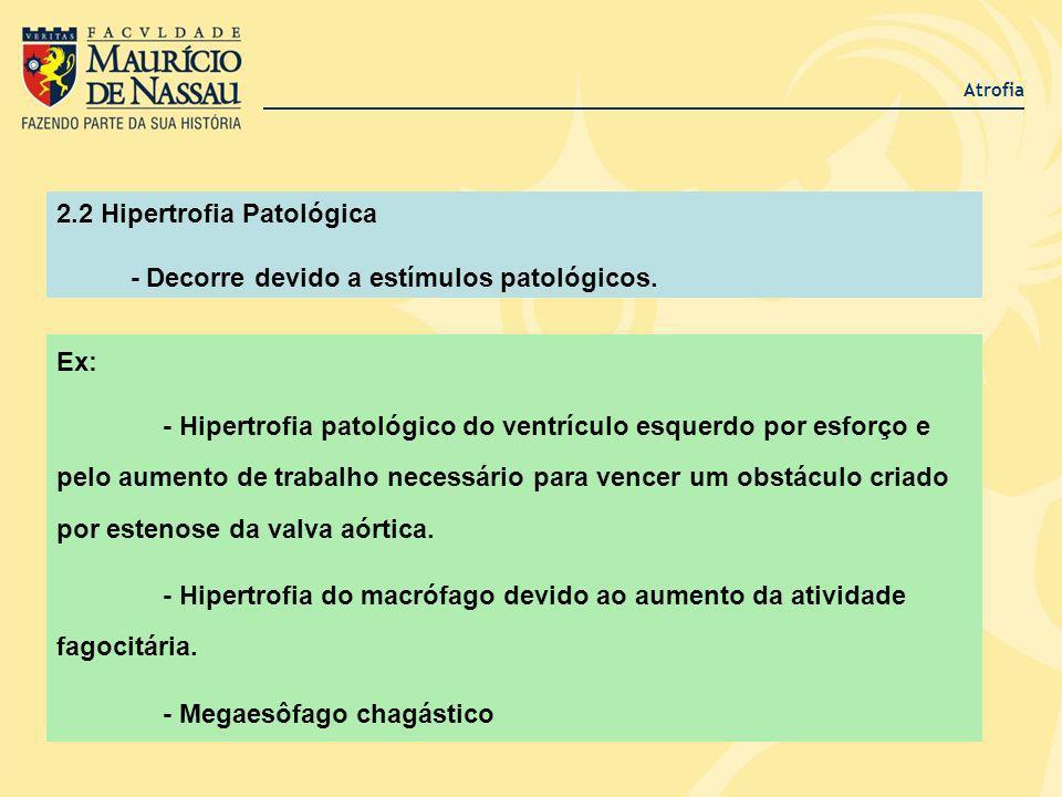 2.2 Hipertrofia Patológica - Decorre devido a estímulos patológicos.