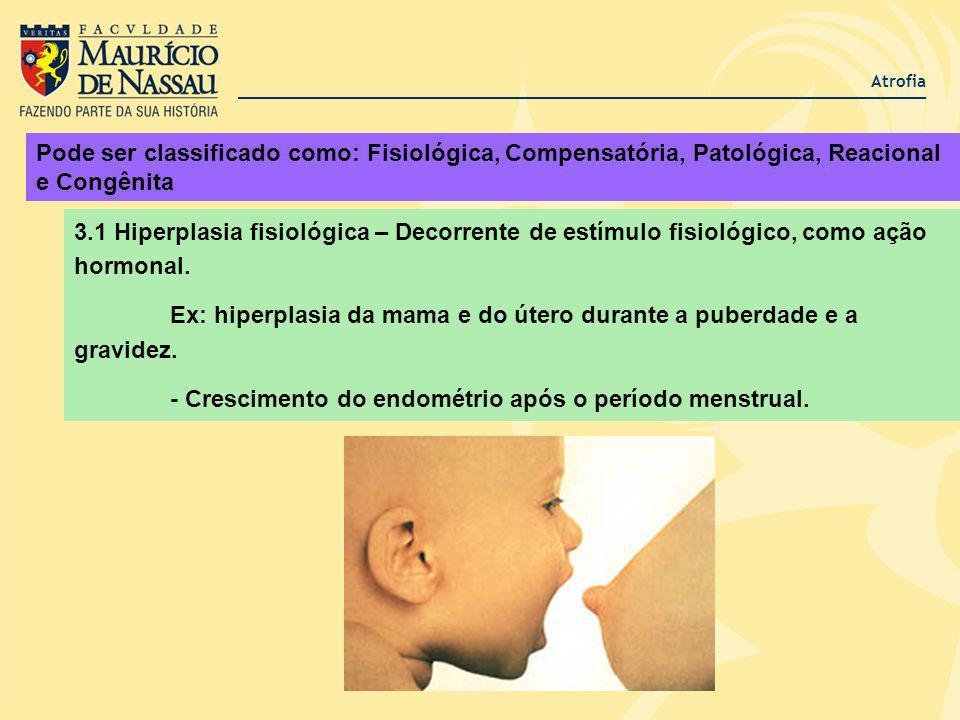 Ex: hiperplasia da mama e do útero durante a puberdade e a gravidez.