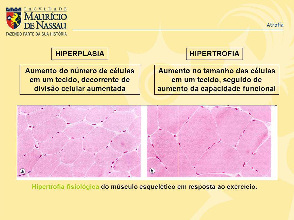 HIPERPLASIA HIPERTROFIA
