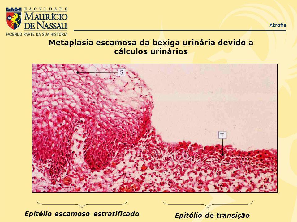 Metaplasia escamosa da bexiga urinária devido a cálculos urinários