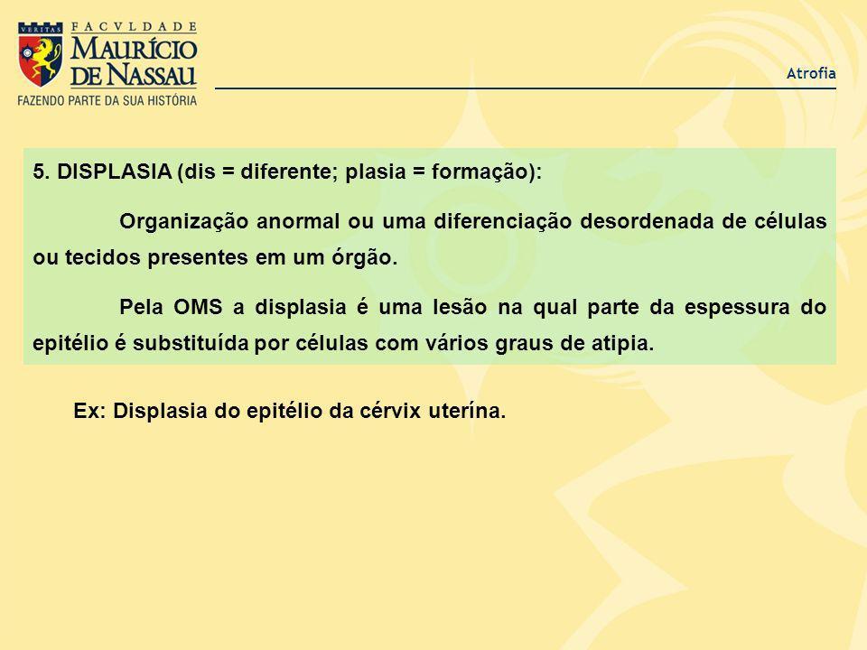 5. DISPLASIA (dis = diferente; plasia = formação):