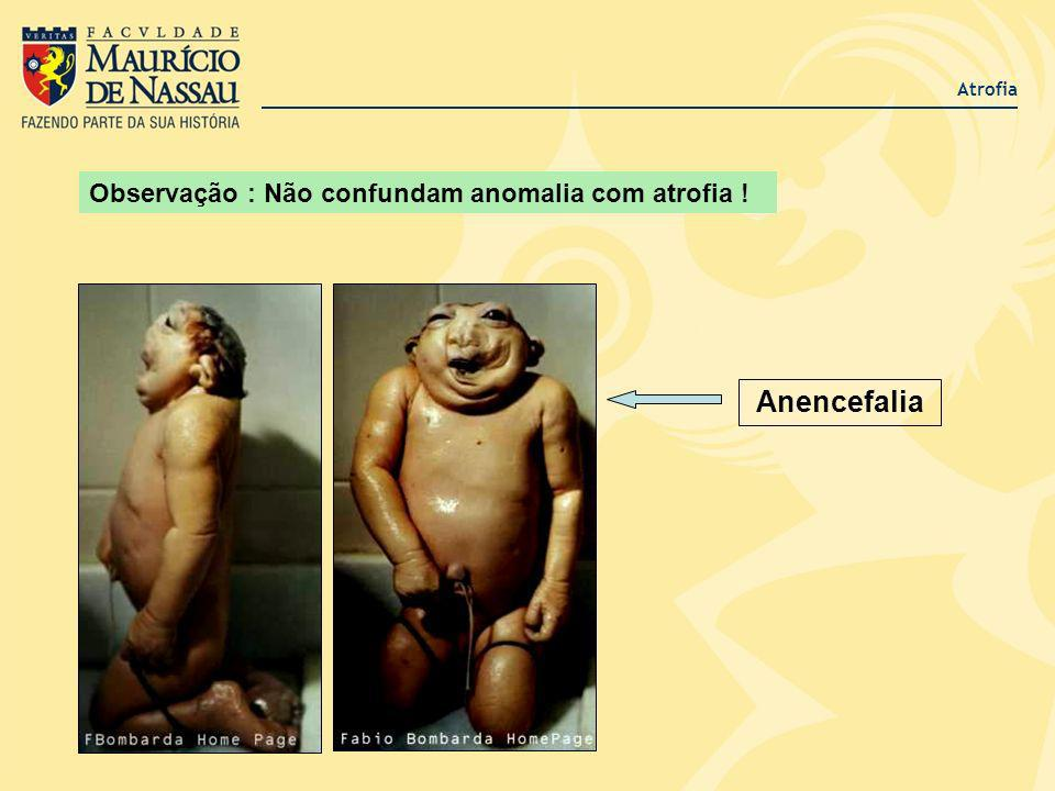 Atrofia Observação : Não confundam anomalia com atrofia ! Anencefalia