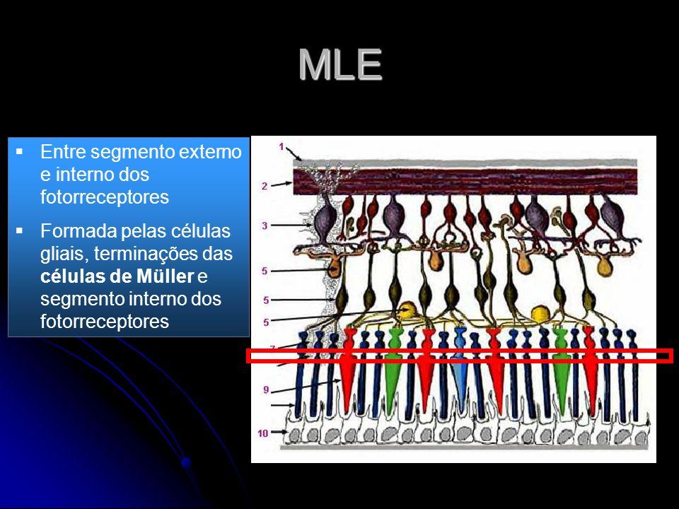 MLE Entre segmento externo e interno dos fotorreceptores
