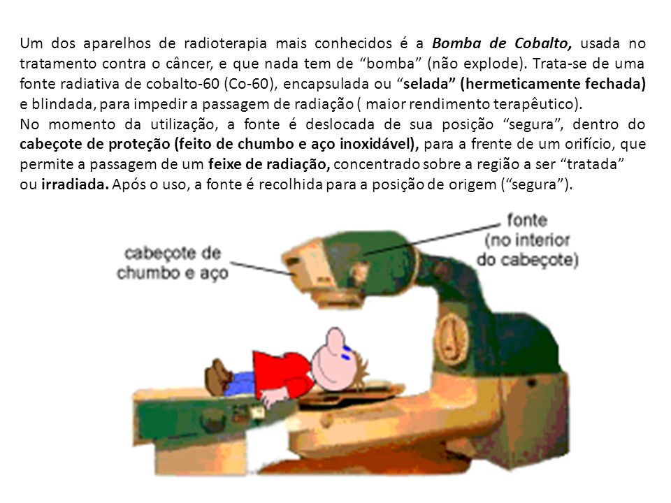 Um dos aparelhos de radioterapia mais conhecidos é a Bomba de Cobalto, usada no tratamento contra o câncer, e que nada tem de bomba (não explode). Trata-se de uma fonte radiativa de cobalto-60 (Co-60), encapsulada ou selada (hermeticamente fechada) e blindada, para impedir a passagem de radiação ( maior rendimento terapêutico).