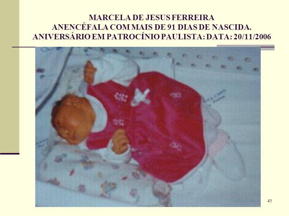 MARCELA DE JESUS FERREIRA ANENCÉFALA COM MAIS DE 91 DIAS DE NASCIDA