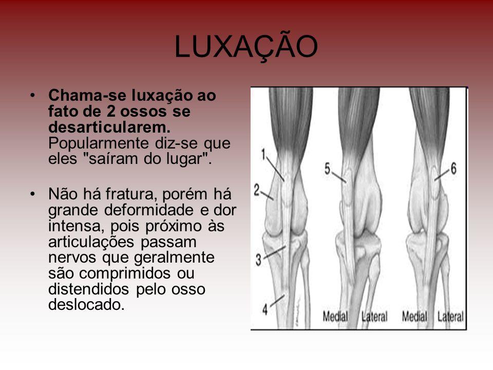 LUXAÇÃO Chama-se luxação ao fato de 2 ossos se desarticularem. Popularmente diz-se que eles saíram do lugar .