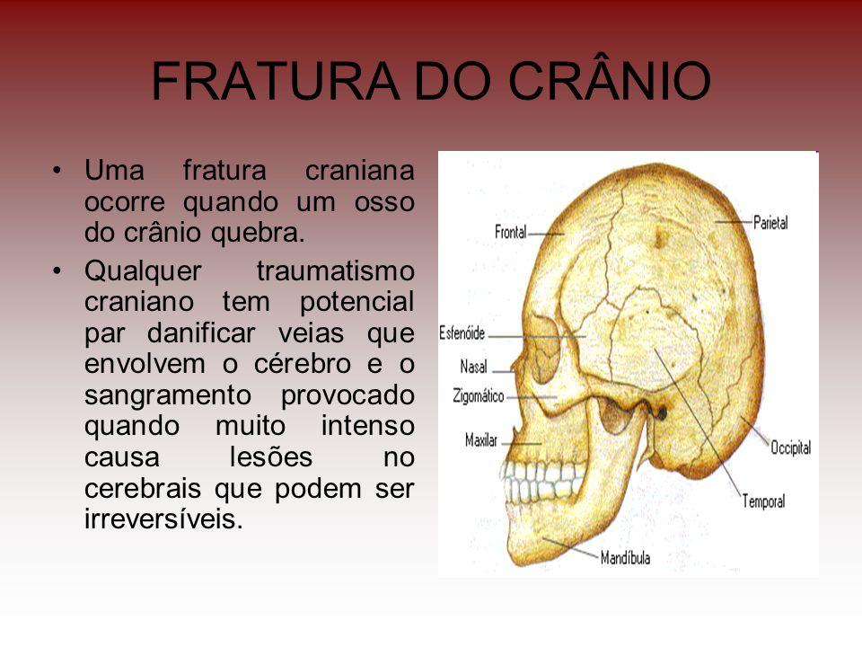 FRATURA DO CRÂNIO Uma fratura craniana ocorre quando um osso do crânio quebra.