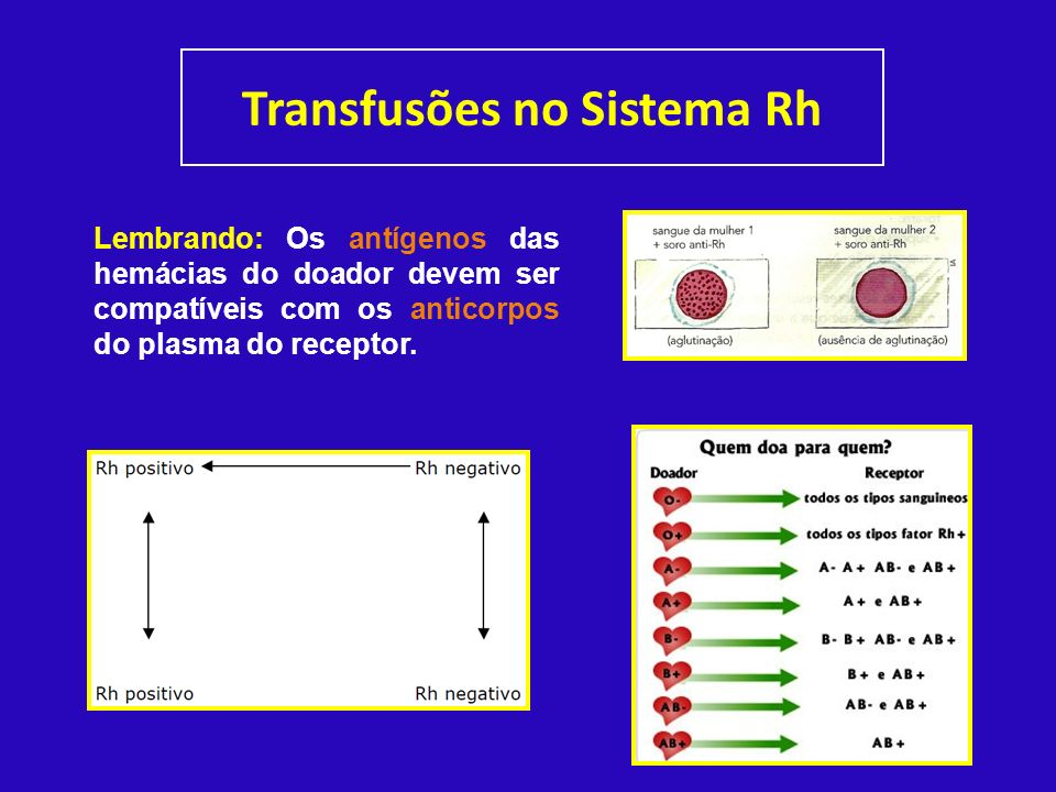 Transfusões no Sistema Rh