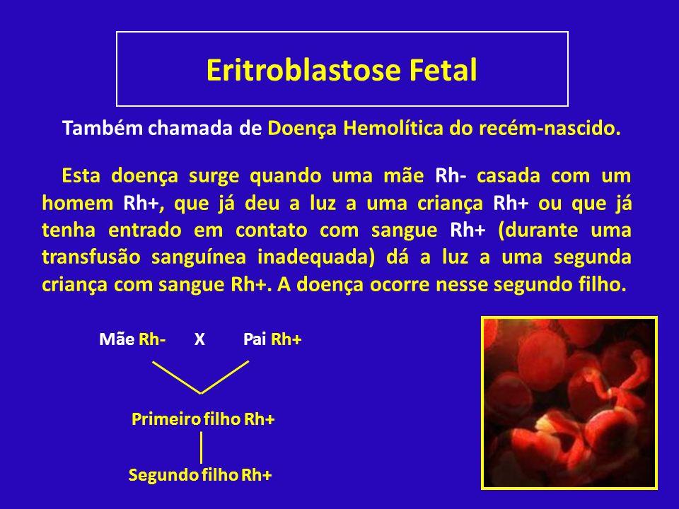 Eritroblastose Fetal Também chamada de Doença Hemolítica do recém-nascido.