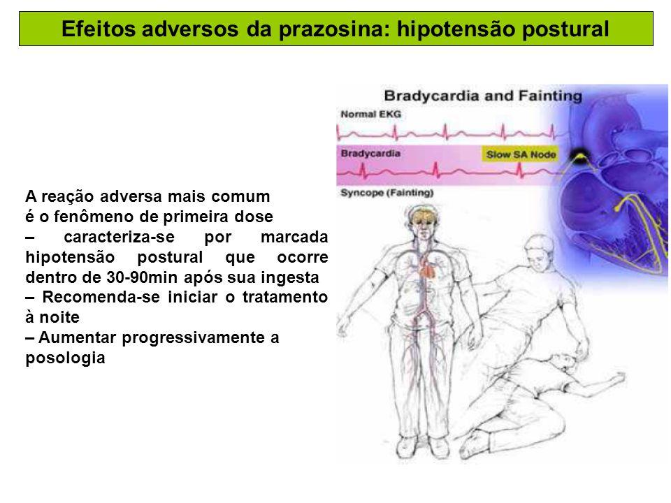 Efeitos adversos da prazosina: hipotensão postural