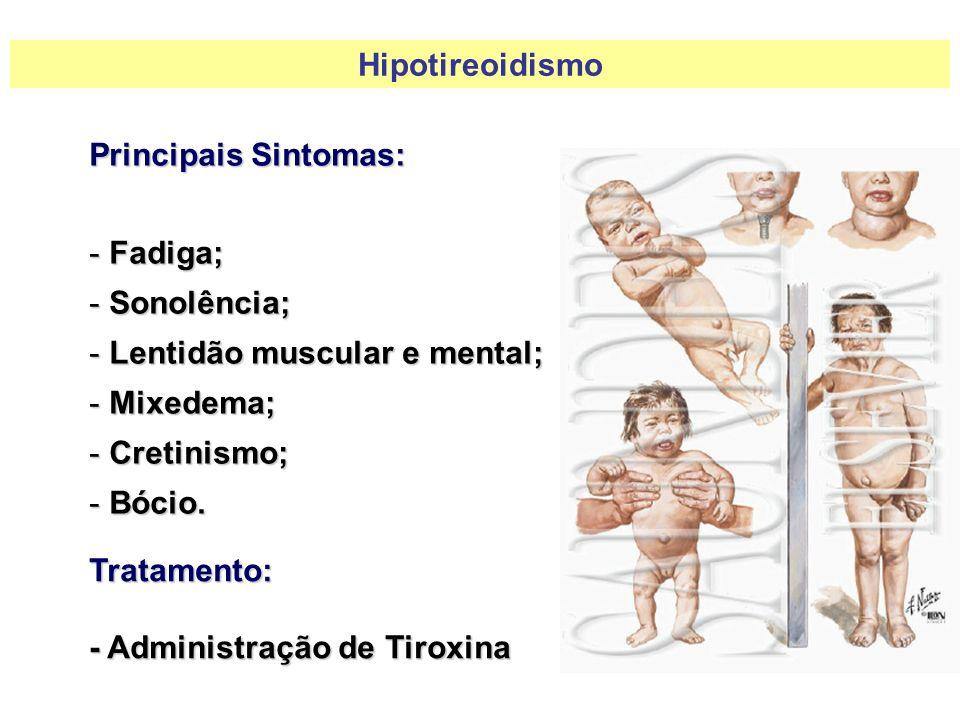 Hipotireoidismo Principais Sintomas: Fadiga; Sonolência; Lentidão muscular e mental; Mixedema; Cretinismo;