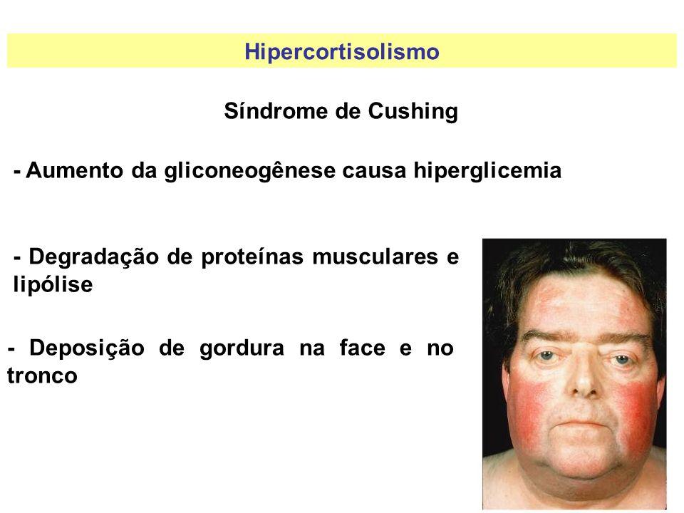 Hipercortisolismo Síndrome de Cushing. - Aumento da gliconeogênese causa hiperglicemia. - Degradação de proteínas musculares e lipólise.