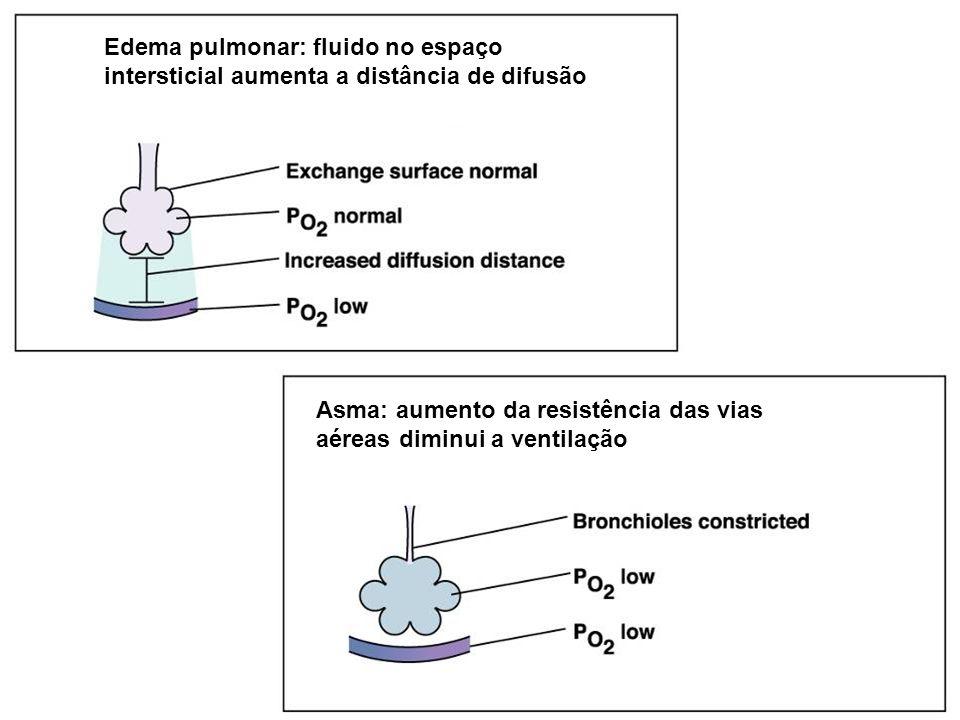 Edema pulmonar: fluido no espaço intersticial aumenta a distância de difusão