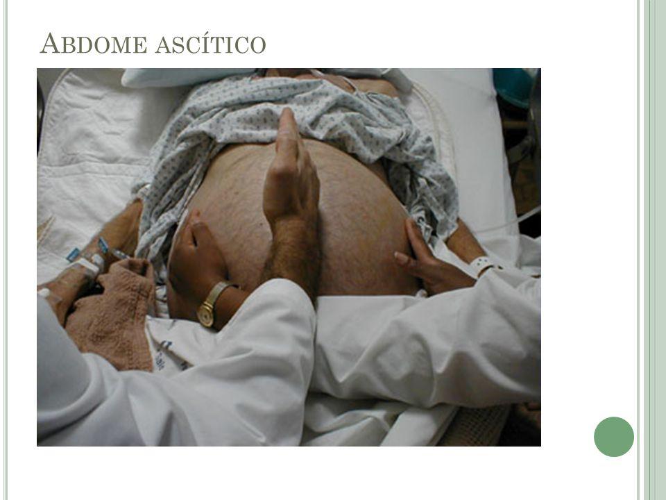 Abdome ascítico