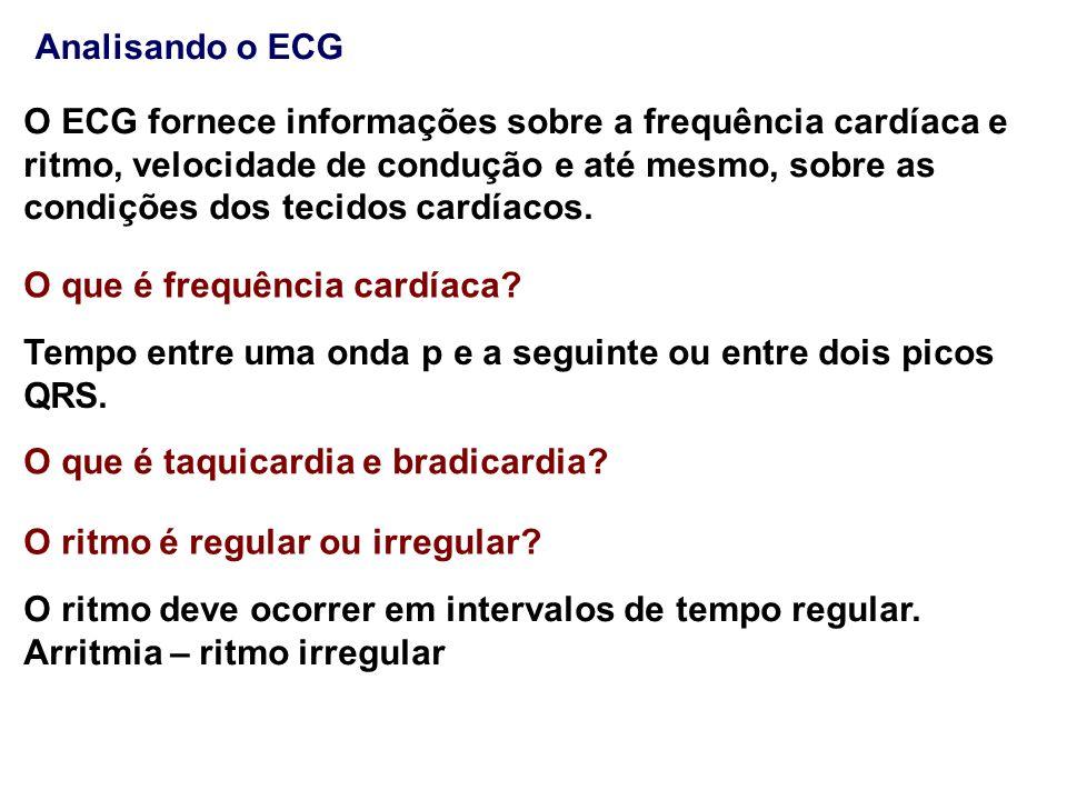 Analisando o ECG