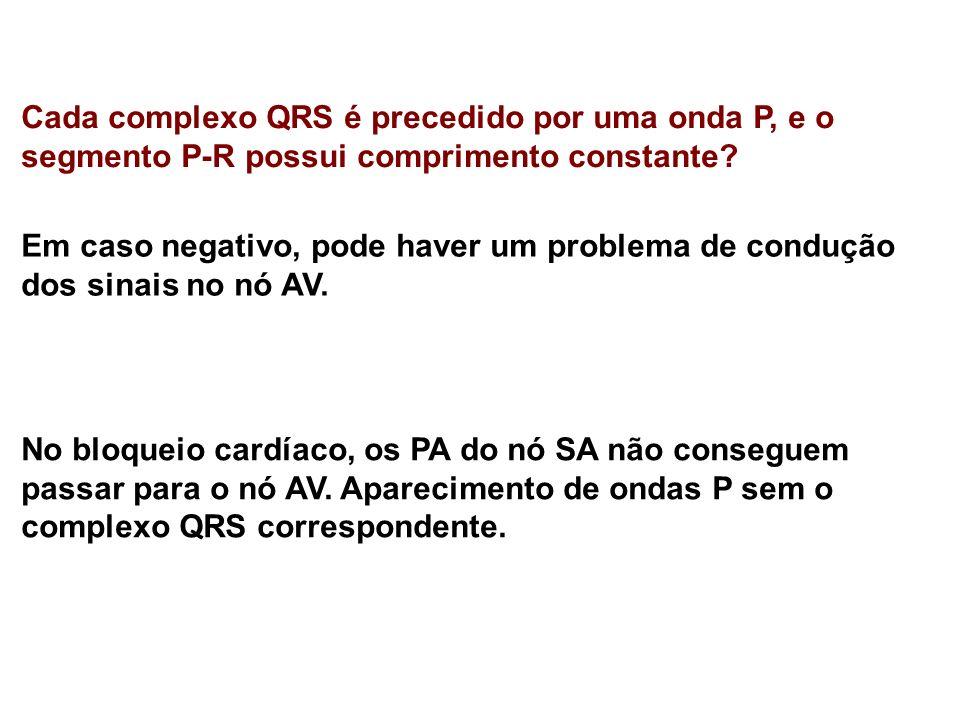Cada complexo QRS é precedido por uma onda P, e o segmento P-R possui comprimento constante