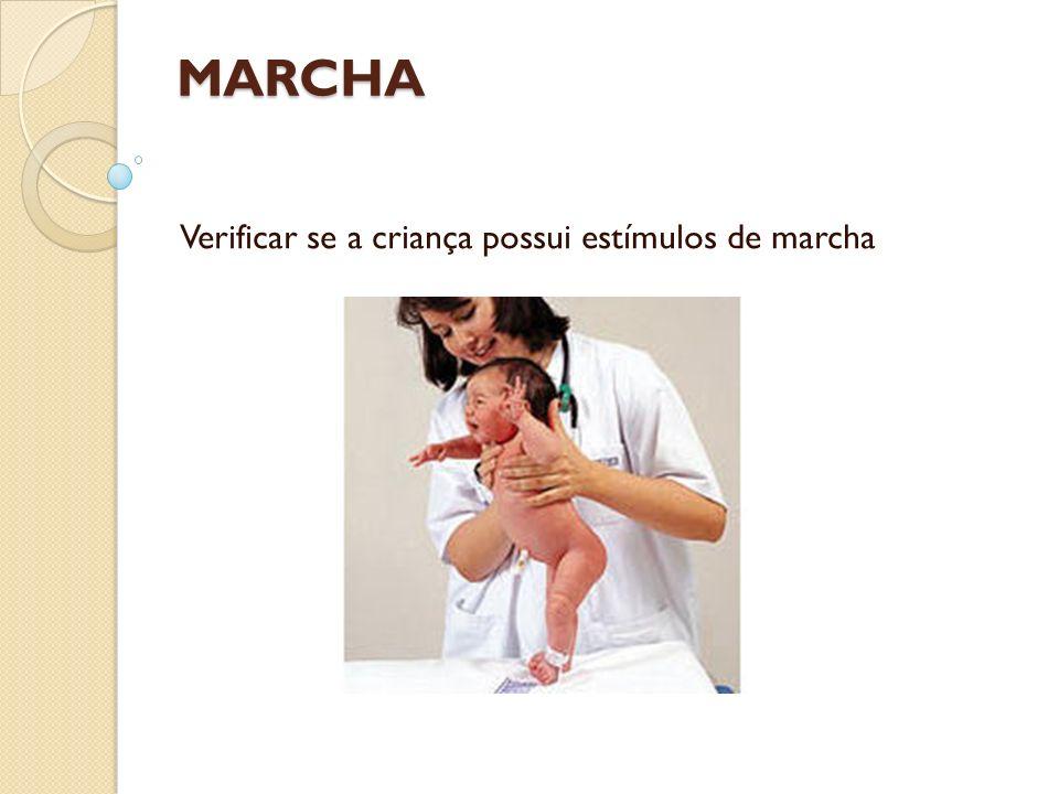Verificar se a criança possui estímulos de marcha