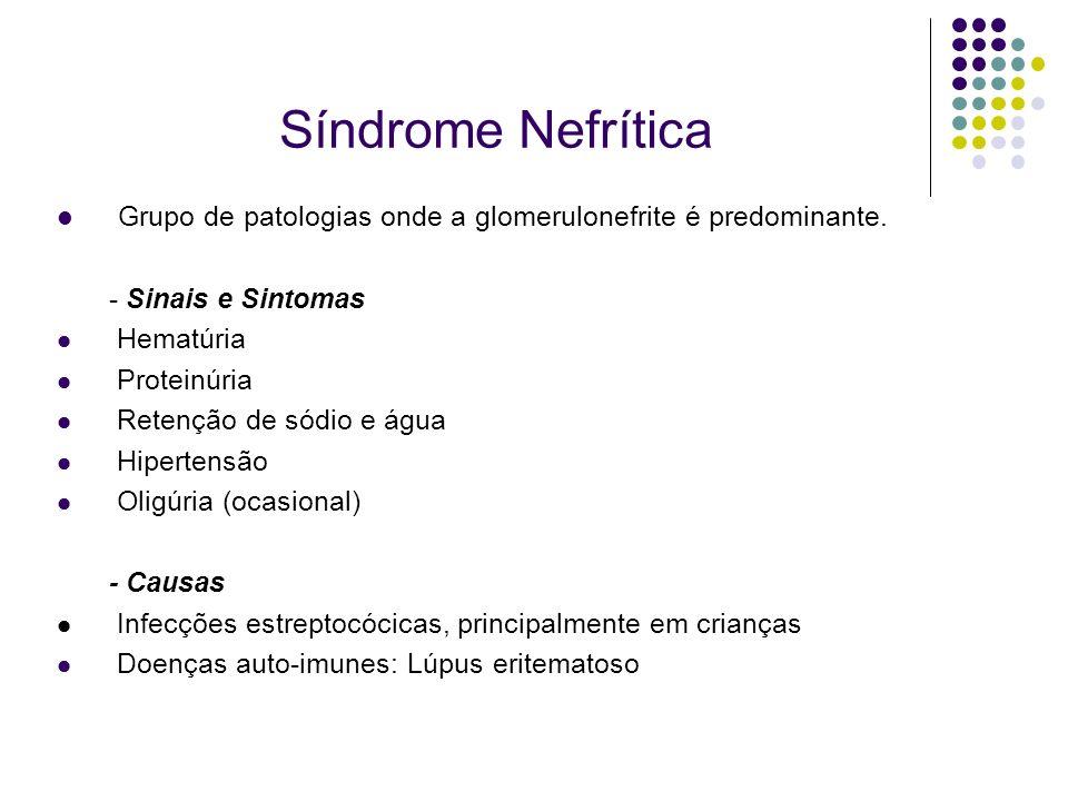 Síndrome NefríticaGrupo de patologias onde a glomerulonefrite é predominante. - Sinais e Sintomas. Hematúria.
