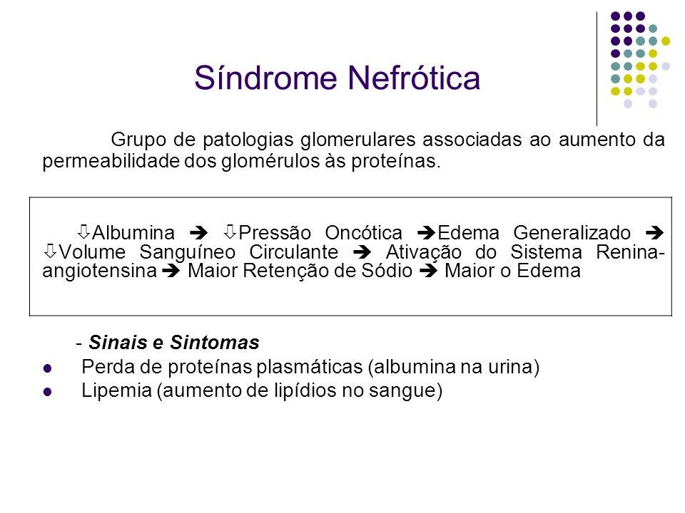Síndrome Nefrótica Grupo de patologias glomerulares associadas ao aumento da permeabilidade dos glomérulos às proteínas.