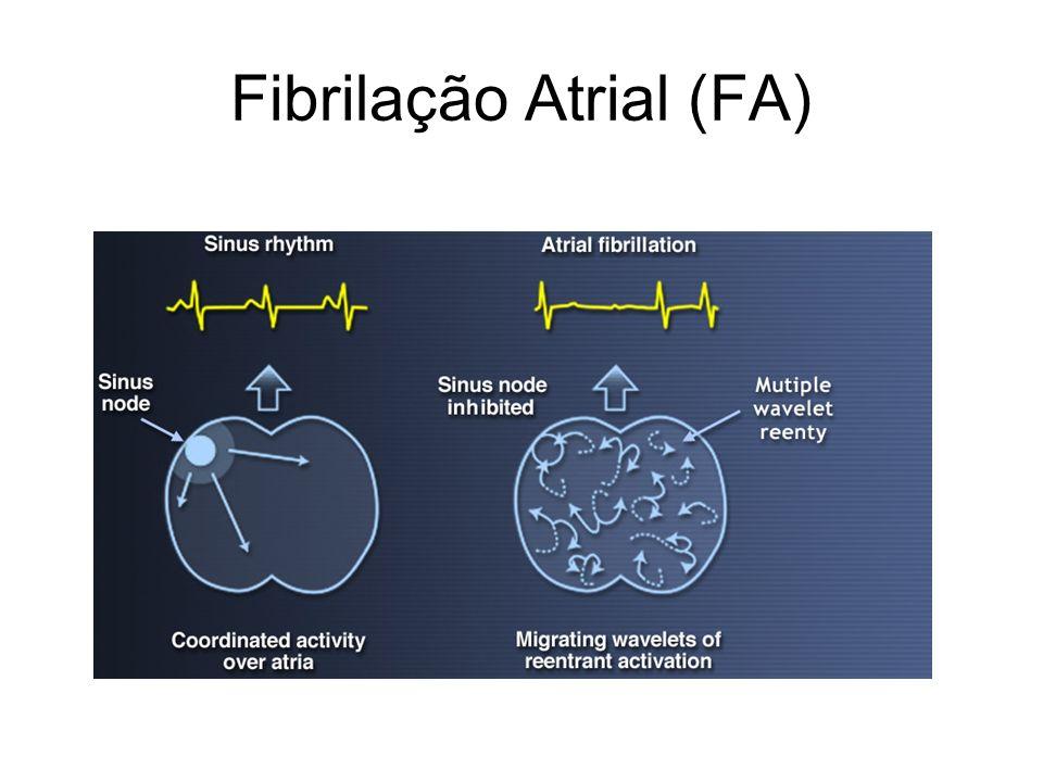 Fibrilação Atrial (FA)