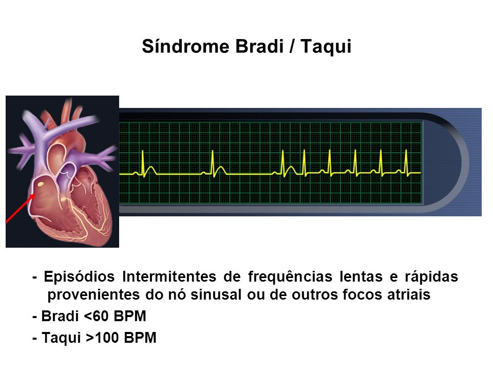 Síndrome Bradi / Taqui - Episódios Intermitentes de frequências lentas e rápidas provenientes do nó sinusal ou de outros focos atriais.
