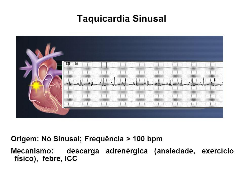 Taquicardia Sinusal Origem: Nó Sinusal; Frequência > 100 bpm