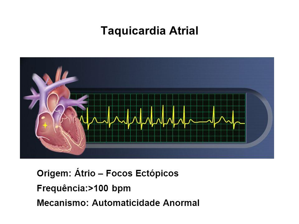 Taquicardia Atrial Origem: Átrio – Focos Ectópicos