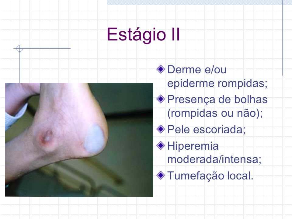 Estágio II Derme e/ou epiderme rompidas;
