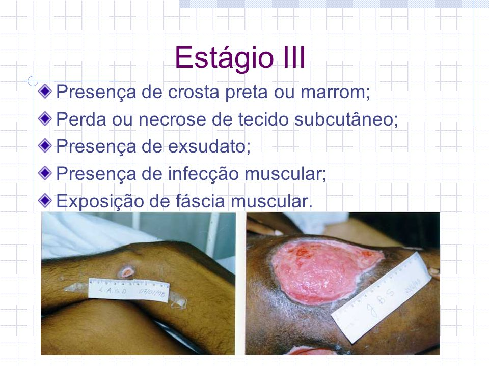 Estágio III Presença de crosta preta ou marrom;