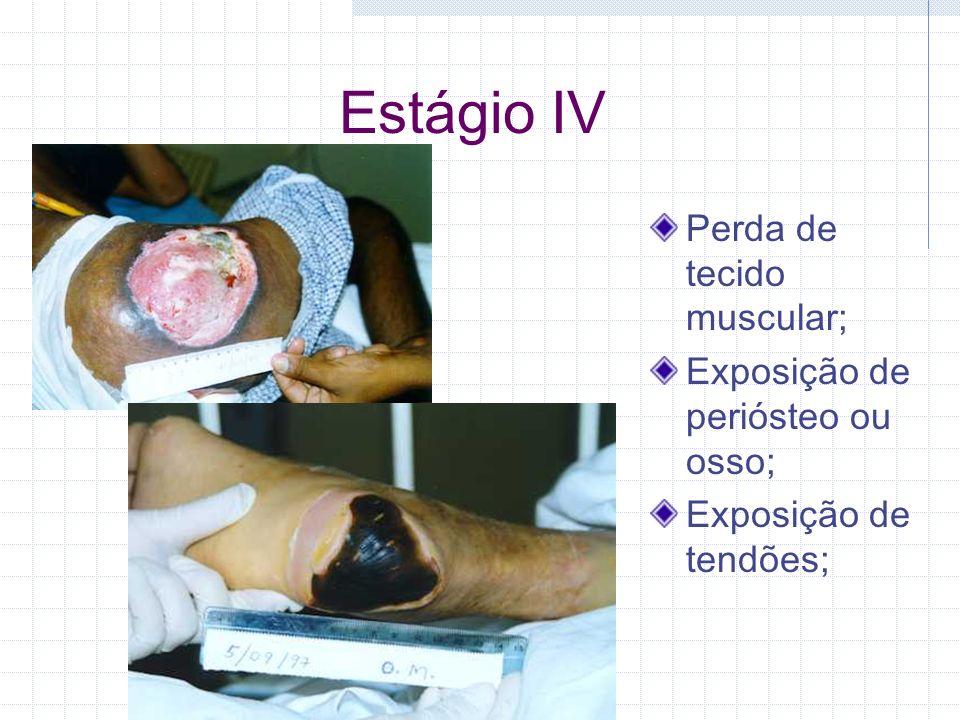 Estágio IV Perda de tecido muscular; Exposição de periósteo ou osso;