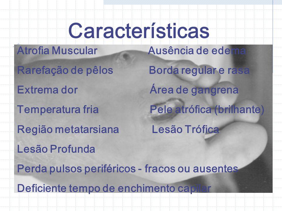 Características Atrofia Muscular Ausência de edema