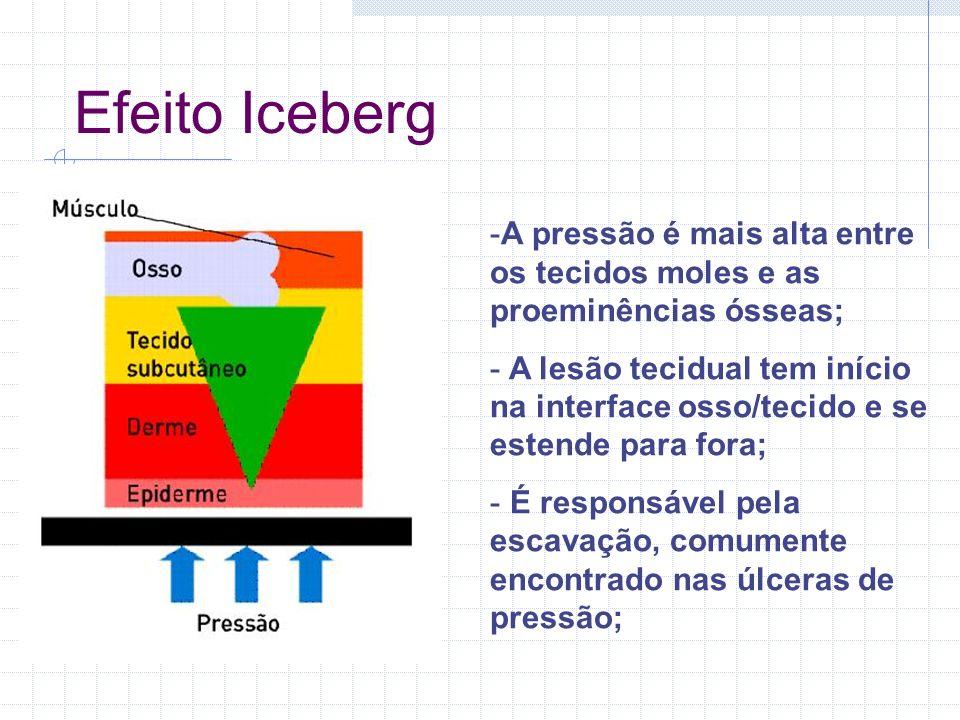 Efeito Iceberg A pressão é mais alta entre os tecidos moles e as proeminências ósseas;