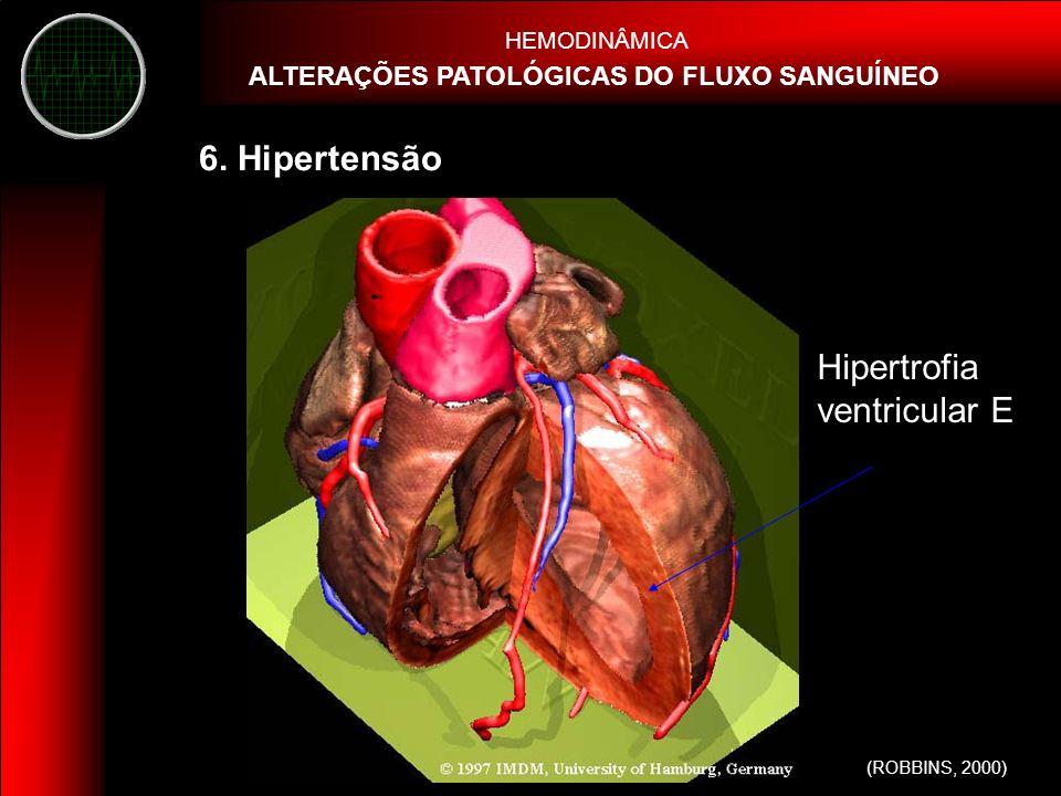 Hipertrofia ventricular E