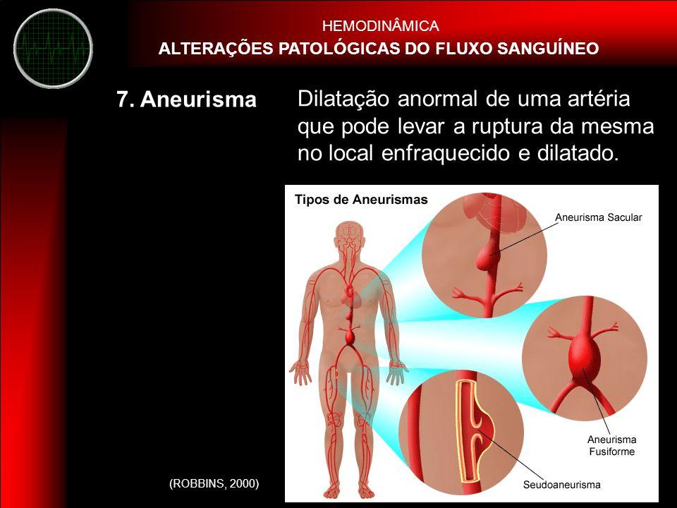 HEMODINÂMICA ALTERAÇÕES PATOLÓGICAS DO FLUXO SANGUÍNEO. 7. Aneurisma.