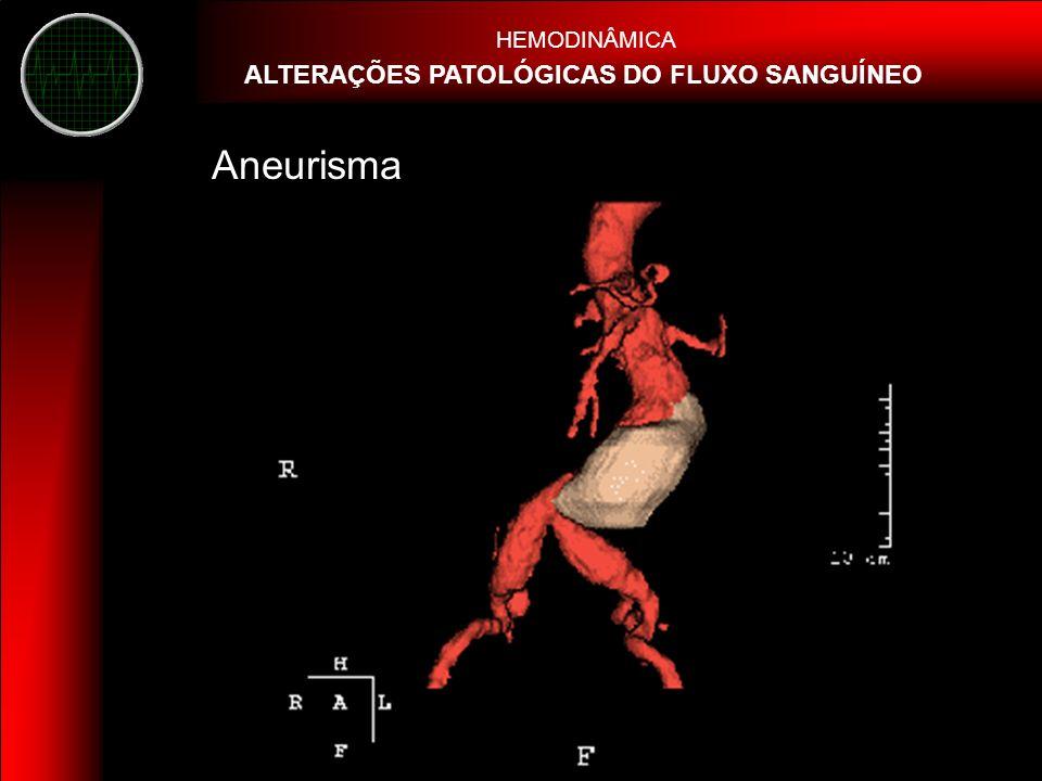 HEMODINÂMICA ALTERAÇÕES PATOLÓGICAS DO FLUXO SANGUÍNEO Aneurisma