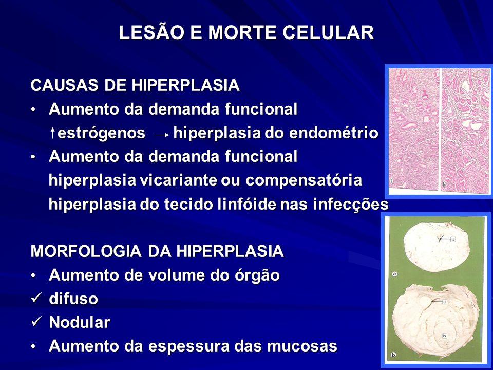 LESÃO E MORTE CELULAR CAUSAS DE HIPERPLASIA