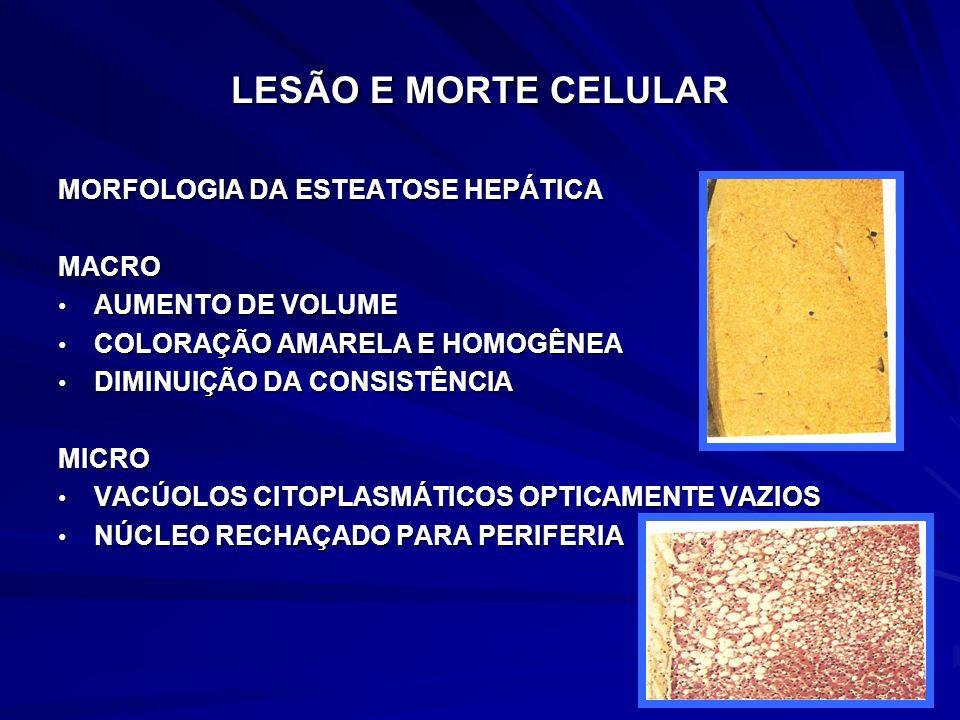 LESÃO E MORTE CELULAR MORFOLOGIA DA ESTEATOSE HEPÁTICA MACRO