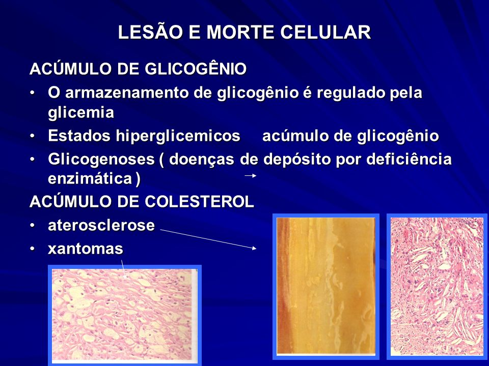 LESÃO E MORTE CELULAR ACÚMULO DE GLICOGÊNIO