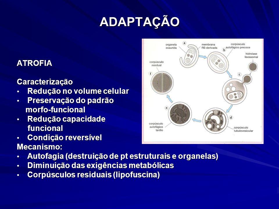 ADAPTAÇÃO ATROFIA Caracterização Redução no volume celular