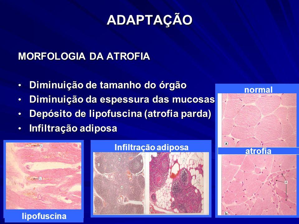 ADAPTAÇÃO MORFOLOGIA DA ATROFIA Diminuição de tamanho do órgão