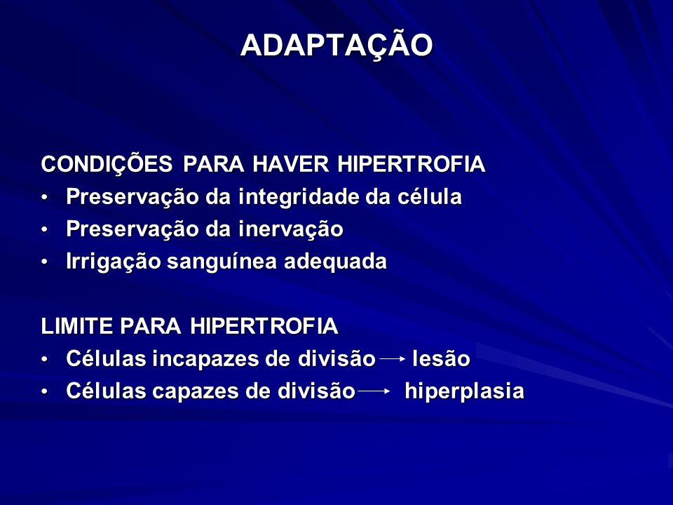 ADAPTAÇÃO CONDIÇÕES PARA HAVER HIPERTROFIA