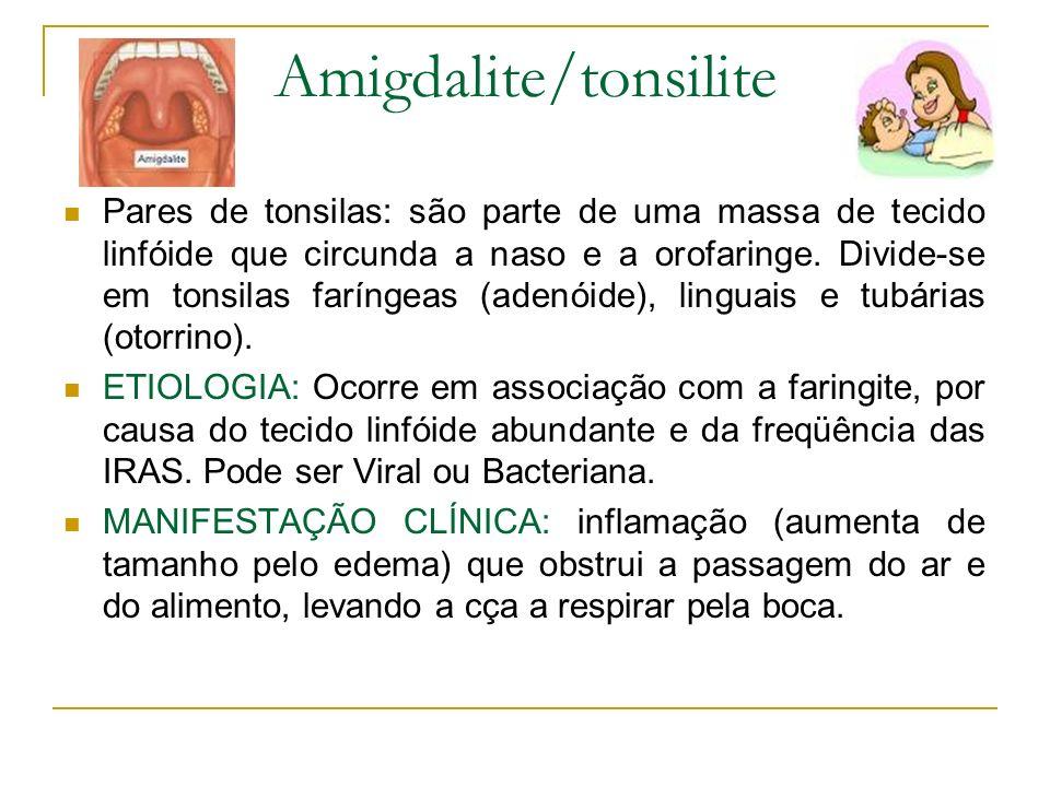 Amigdalite/tonsilite