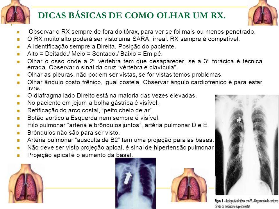 DICAS BÁSICAS DE COMO OLHAR UM RX.