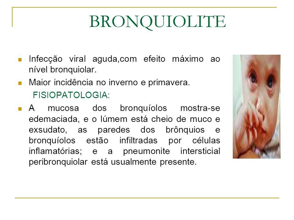 BRONQUIOLITE Infecção viral aguda,com efeito máximo ao nível bronquiolar. Maior incidência no inverno e primavera.