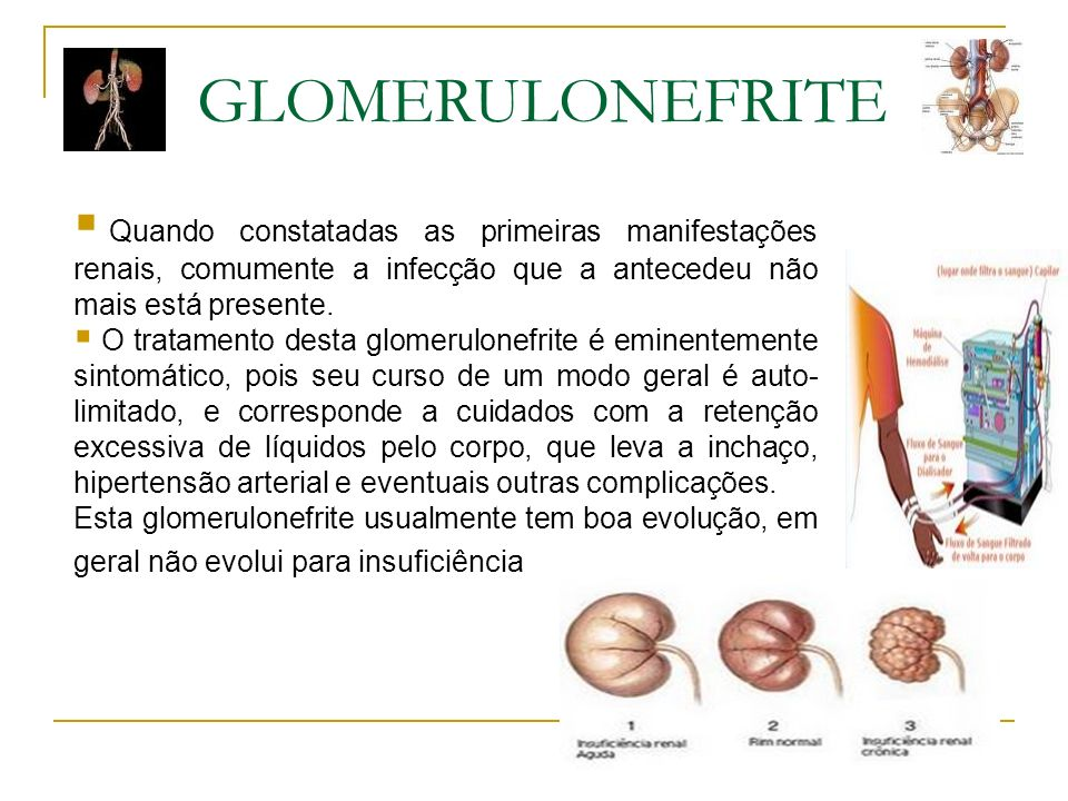 GLOMERULONEFRITE Quando constatadas as primeiras manifestações renais, comumente a infecção que a antecedeu não mais está presente.