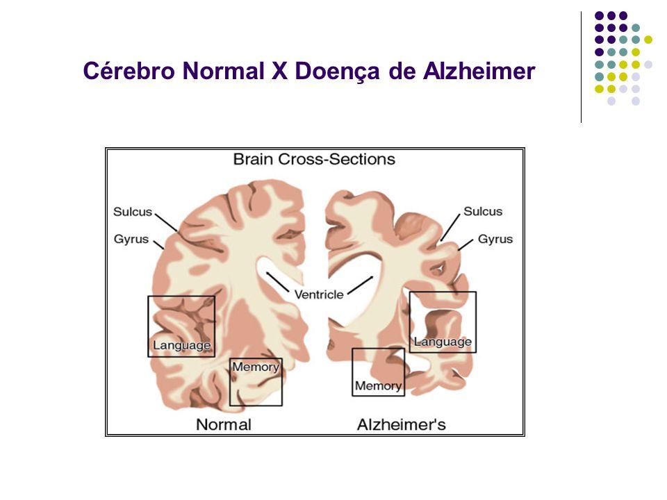 Cérebro Normal X Doença de Alzheimer
