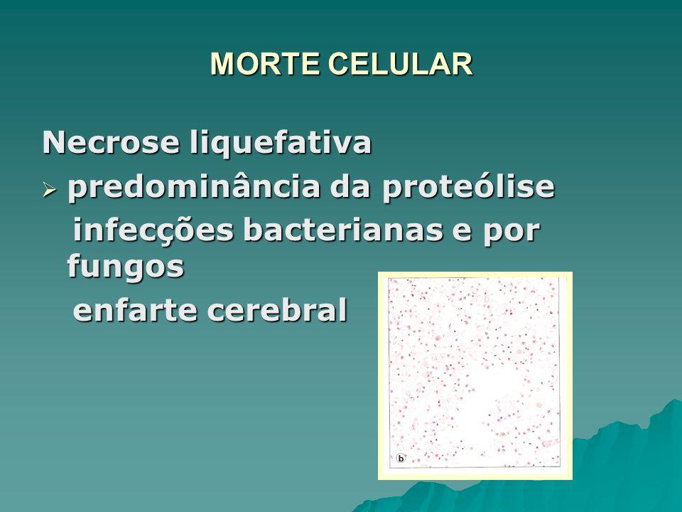 MORTE CELULAR Necrose liquefativa. predominância da proteólise. infecções bacterianas e por fungos.