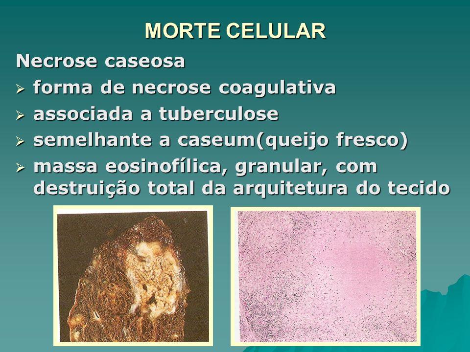 MORTE CELULAR Necrose caseosa forma de necrose coagulativa
