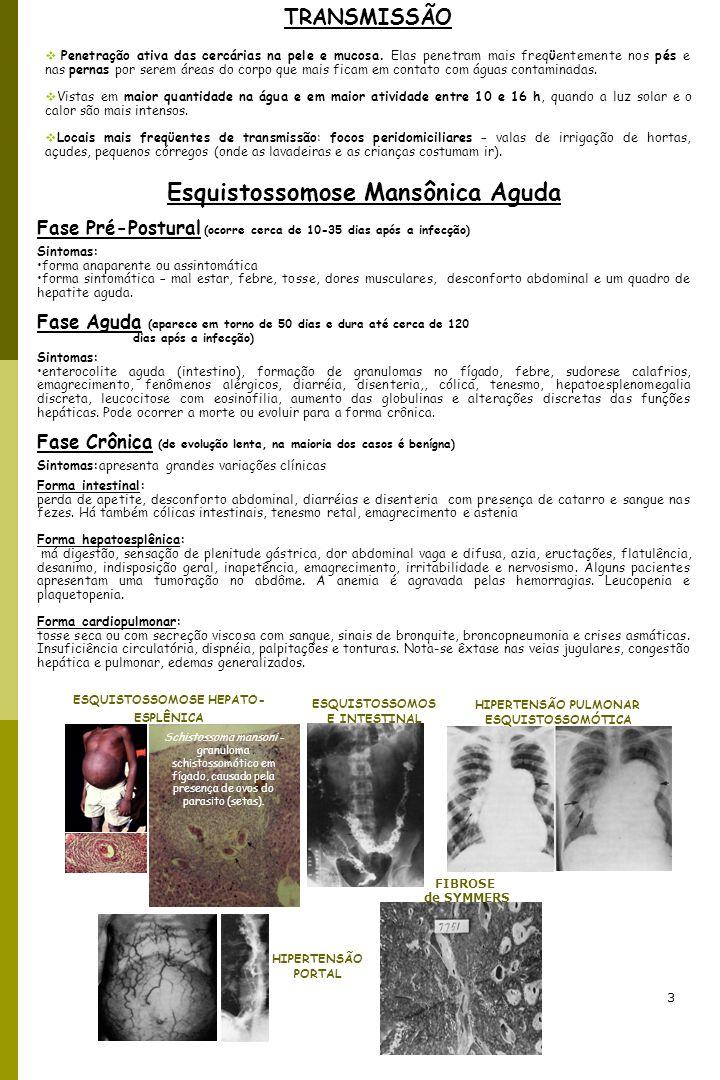 Esquistossomose Mansônica Aguda