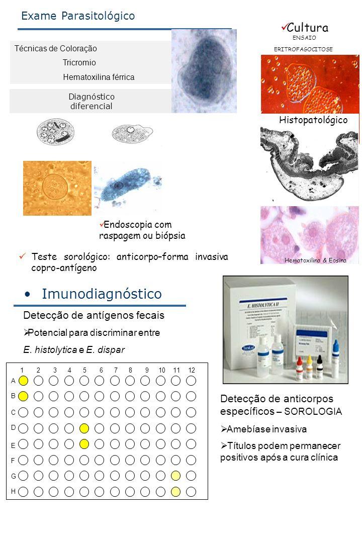Imunodiagnóstico Cultura Exame Parasitológico